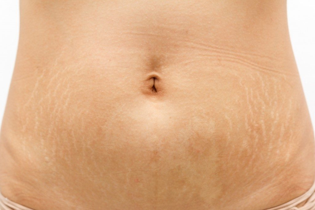 stretch marks on the abdomen