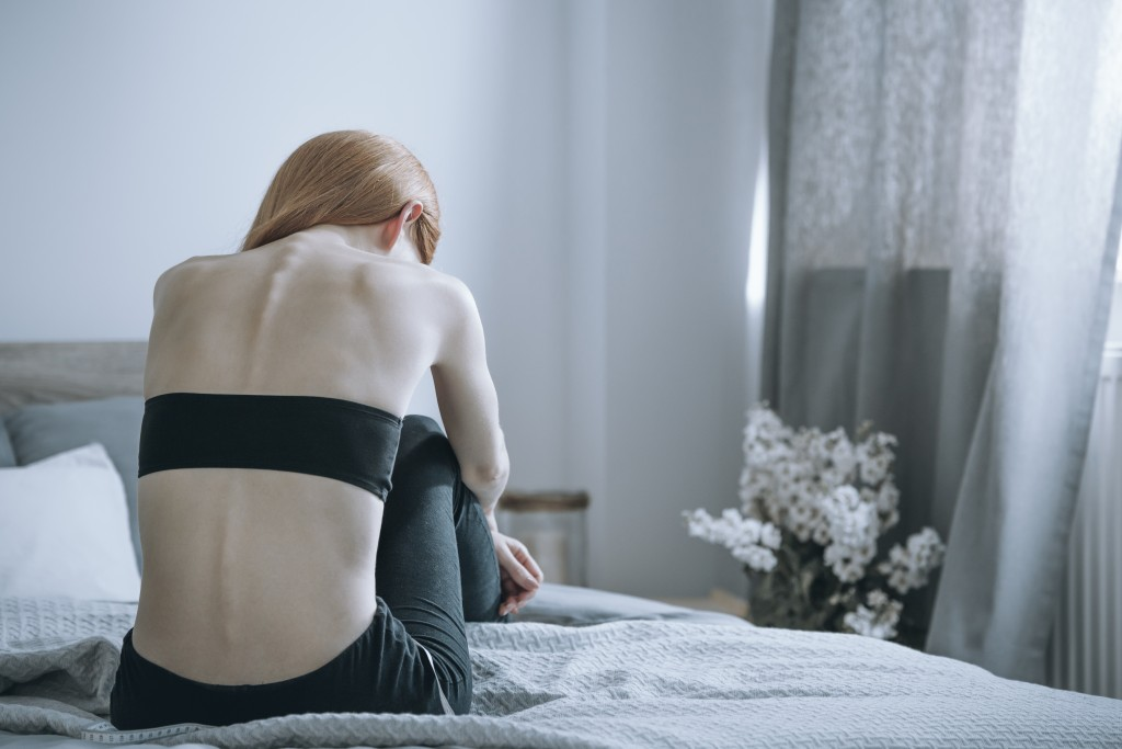 Woman with anorexia in bed
