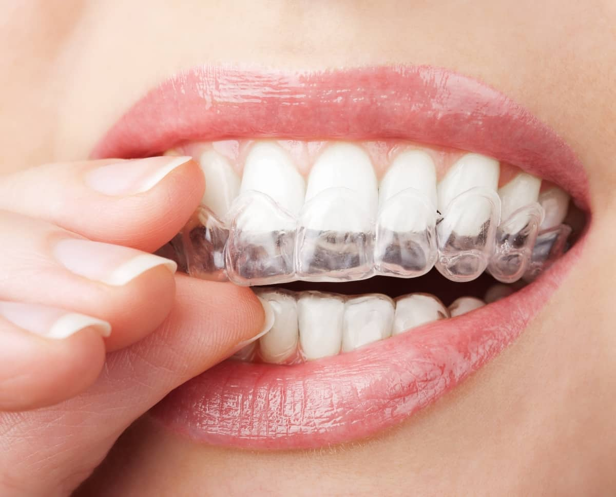 woman wearing clear retainers